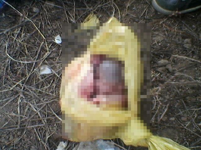 Resultado de imagem para Feto é achado dentro de sacola de lixo no centro de cidade da Paraíba